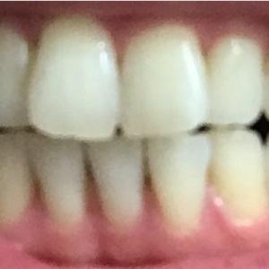 気になっていた息子の前歯をキレイに♪