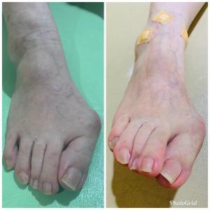 パンプス足にブロック注射した結果