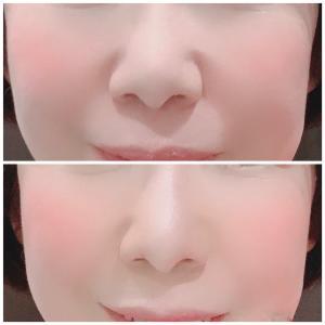 鼻が高く見える資生堂コンシーラー