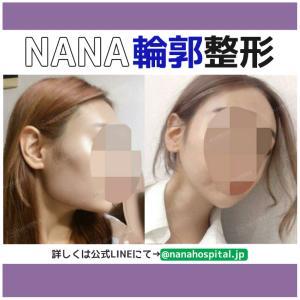 【韓国整形/韓国美容】NANA美容外科☆NANAハロウィンキャンペーン☆【美容整形編】