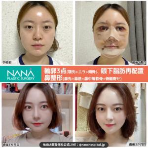 【韓国整形/韓国美容】NANA美容外科☆輪郭3点、眼下脂肪再配置、鼻整形☆ビフォーアフター症例