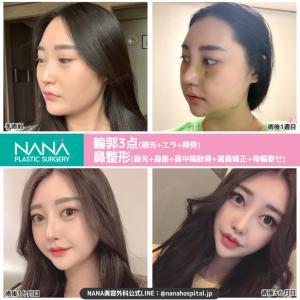 【韓国整形/韓国美容】NANA美容外科☆輪郭3点鼻整形☆ビフォーアフター症例写真