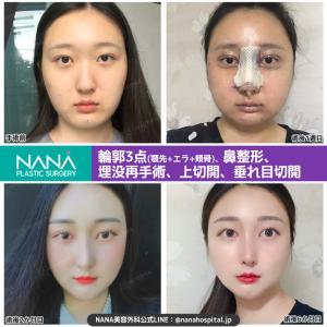 【韓国整形/韓国美容】NANA美容外科☆輪郭3点・鼻整形・目再手術☆ビフォーアフター症例写真