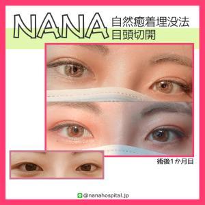 【韓国整形/韓国美容】NANA美容外科☆二重埋没・目頭・目尻・目付き矯正などキャンペーン実施中‼