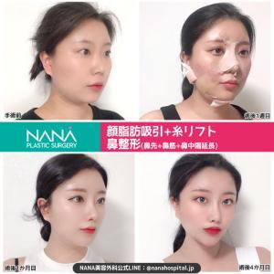 【韓国整形/韓国美容】NANA美容外科☆顔脂肪吸引・糸リフト・鼻整形☆ビフォーアフター症例写真