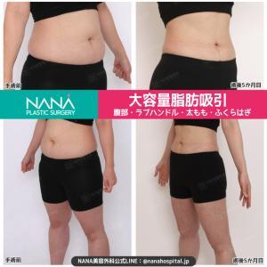 【韓国整形/韓国美容】NANA美容外科☆大容量脂肪吸引(腹部・太ももなど)ビフォーアフター症例