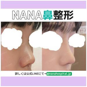 【韓国整形/韓国美容】NANA美容外科☆鼻整形のチェックポイント&ビフォーアフター症例写真☆