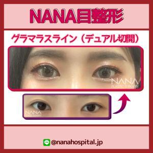 【韓国整形/韓国美容】NANA美容外科☆目整形のチェックポイント&ビフォーアフター症例写真☆