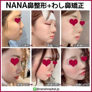 【韓国整形/韓国美容】NANA美容外科☆驚きの変化‼ビフォーアフター症例写真を大公開します!