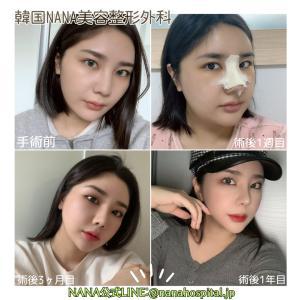 【韓国整形/韓国美容外科】顔脂肪移植による驚きの大変化‼NANAビフォーアフター症例~!☆