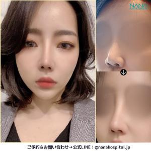 NANA鼻整形ビフォーアフター症例写真#鼻整形 (#鼻尖縮小 #鼻筋プロテーゼ )...