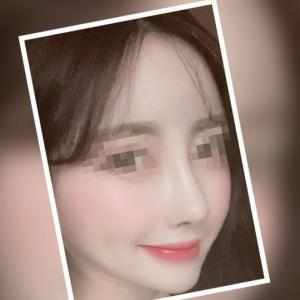 【韓国整形/韓国美容】NANA美容外科☆団子鼻・わし鼻・存在感ありありの鼻が悩み!!#鼻整形