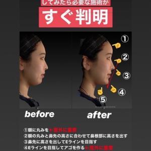 お顔の3Dシミュレーション(Vectra®︎)でイメージ共有!