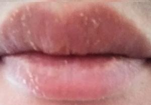 唇の麻痺が治らないため病院へGO