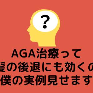 AGA治療って前髪の後退にも効くの?【僕の実例見せます】