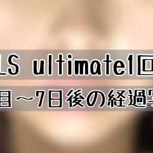 BNLS ultimate1回目の経過ブログ!効果は?写真で確認