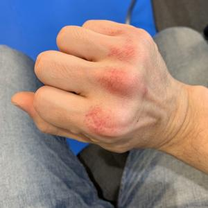 運動療法でボクシングをしています