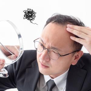 【中国ニュース】中国で抜け毛に悩まされている人の数→2億5千万人