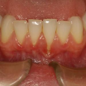 歯茎が下がったところには歯石がつきやすくなる場合があります。