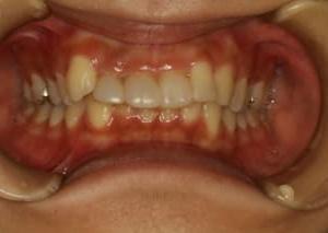 差し歯の歯茎の位置によって歯の見え方が変わります。
