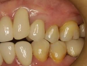 もうご存知ですね。セラミックの差し歯が長くて気になってしまっている方のための審美歯科治療