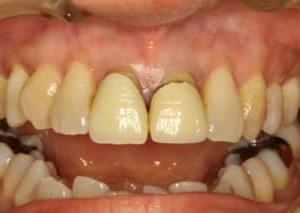 あなたの差し歯の歯茎は下がってしまっていませんか?