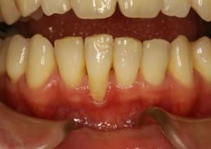 歯周病が進行した場合抜いてインプラント治療をする前に再生治療を検討されていますか?