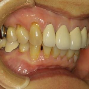 ご注意ください。長くなった差し歯を直す時に歯を小さくすることができます。