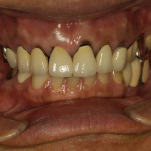 前歯の差し歯は、古くなると汚く見えます。その原因はご存知ですか?