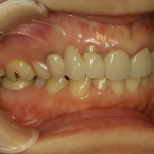 要注意です。歯を抜いた後にブリッジ治療をする場合、歯茎が下がって歯が長くなってしまう事があります。お勧めの審美歯科治療
