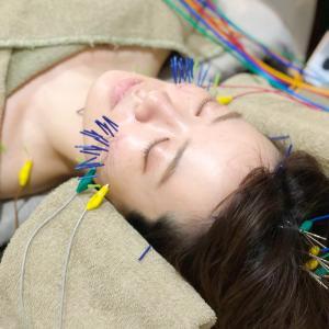 芸能人御用達!美容鍼ハリッチ(HARICCHI)の効果を検証