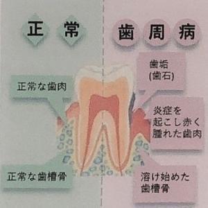 歯を失う最大の原因!?【歯周病のお話】