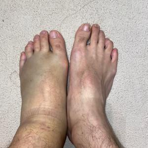 左下腿打撲 左腓腹筋挫傷 その2