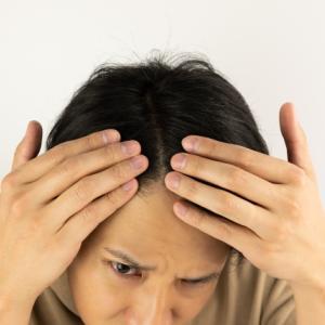 薄毛治療に有効なオススメの方法