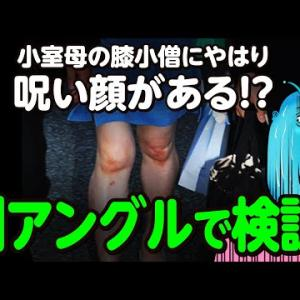 """【KK問題】遺族年金搾取疑惑の小室母の膝小僧にやはり""""呪いの顔""""がある!?別アングルで再検証!!"""