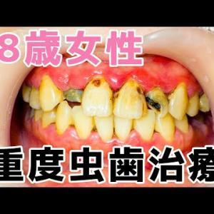 【28歳女性】虫歯治療編🦷ボロボロの前歯が驚きの変化✨😄