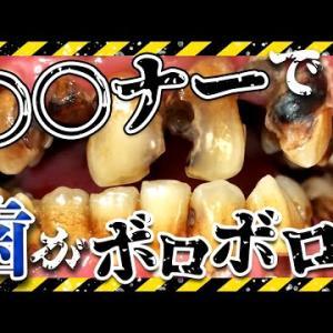 ○○ナーで歯がボロボロ😱