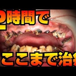 重度虫歯2時間でここまで治療[dentistry][歯医者](2小時內就能完成這些治療)