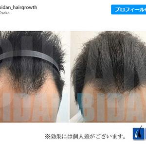 [口コミ調査]今話題の発毛専門サロンビダン-BIDAN -の評判は?