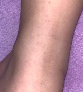 IgA血管炎(アレルギー性紫斑病)の記録③自宅療養2ヶ月目〜3ヶ月目 紫斑はいつまで続く。。。