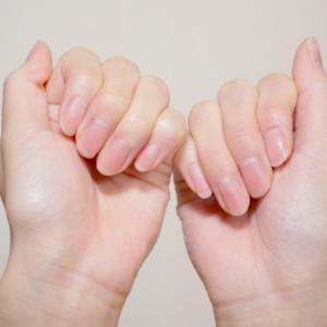 爪をみたら健康状態がわかる?もしかしてたんぱく質不足かも!