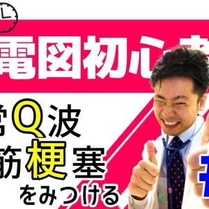 心電図(ECG)⑧ 異常Q波 心電図検定、病棟、テスト、試験にも使える 心臓専門医 米山喜平(Yoneyama, Kihei)