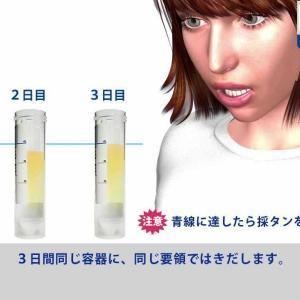 肺がん検査のかく痰採取の仕方