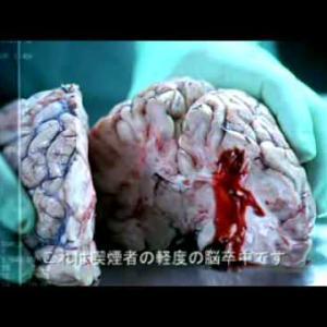 オーストラリア禁煙CM(日本語字幕付) 脳卒中編