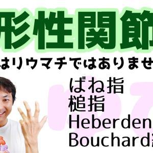 変形性関節症の指所見(ばね指、槌指、Heberden結節、Bouchard結節:指関節(Part.3)