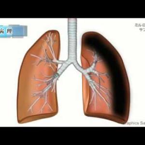 呼吸不全/2分で分かる医療動画辞典 ミルメディカル