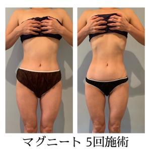 マグニート痩身 5回の結果写真