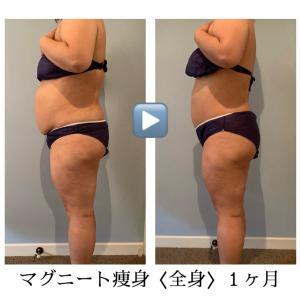 マグニート痩身〈全身〉1ヶ月の結果
