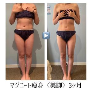 マグニート痩身〈美脚〉3ヶ月の結果