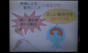 """脳梗塞・脳出血後遺症に新たなリハビリ革命!?""""動きのコツ""""とは?"""